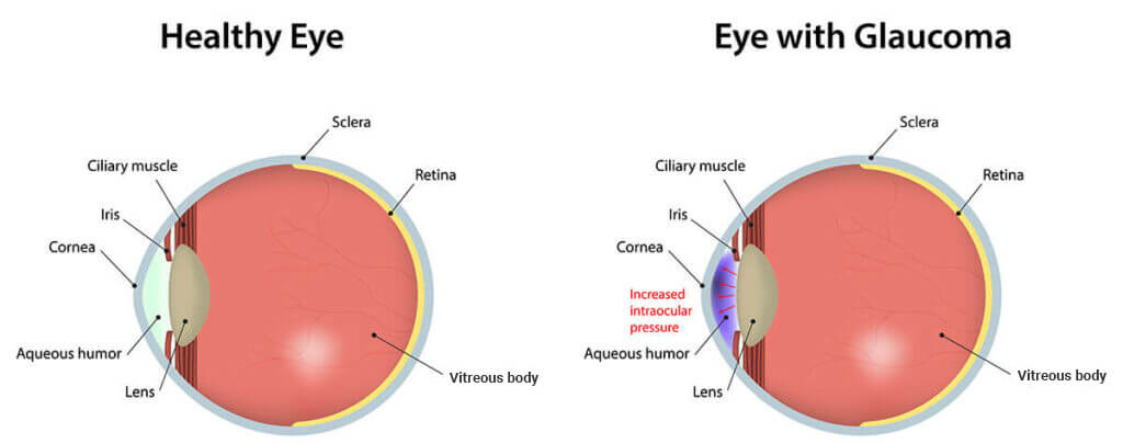 Cell Atlas Of Aqueous Humor Outflow Pathways In Eyes Of Humans And