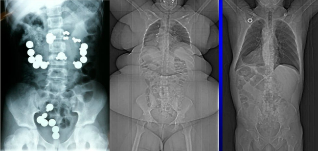 10 Shocking X Rays that are unbelievably real