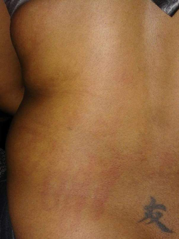 Severely Battered Woman Yolo Pityana Shows Brutalized Body