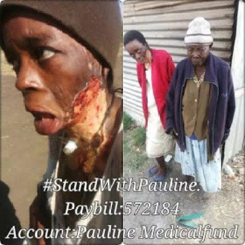 Kenyan Woman Pauline Mugure Set Her On Fire By Husband In Violent Domestic Abuse Attack