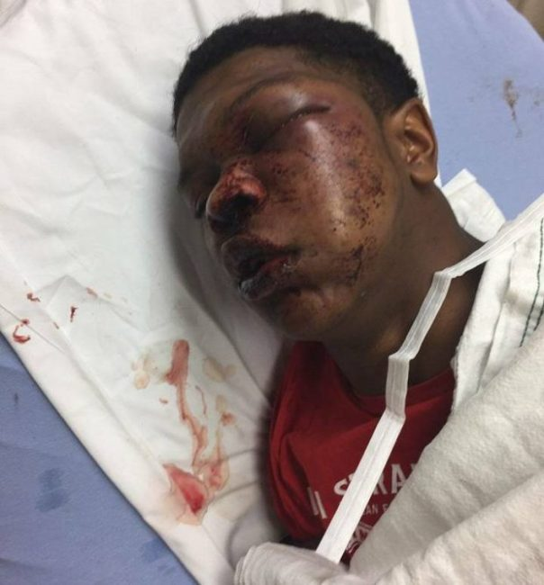 Police Officers Battered Teen Beyond Recognition Despite Being In Handcuffs