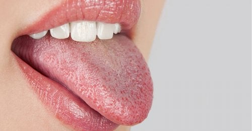 """relation between dry mouth and diabetes """"width ="""" 500 """"height ="""" 260 """" data-recalc-dims="""