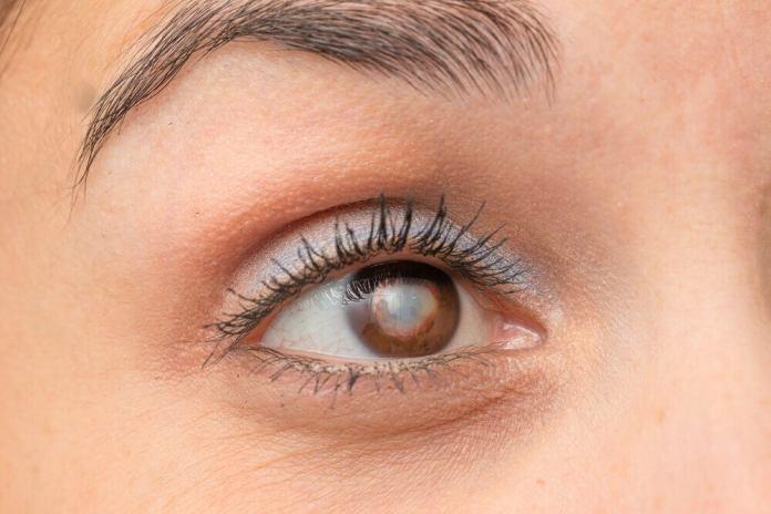 syptomes de la cataracte