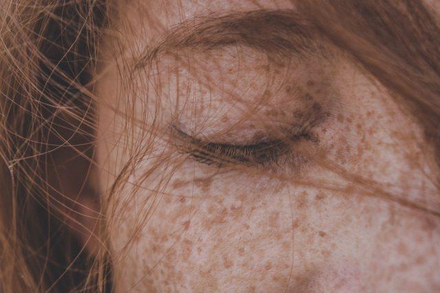 Regla ABCDE: aprende a autoexplorarte en este Día Mundial del Cáncer de piel