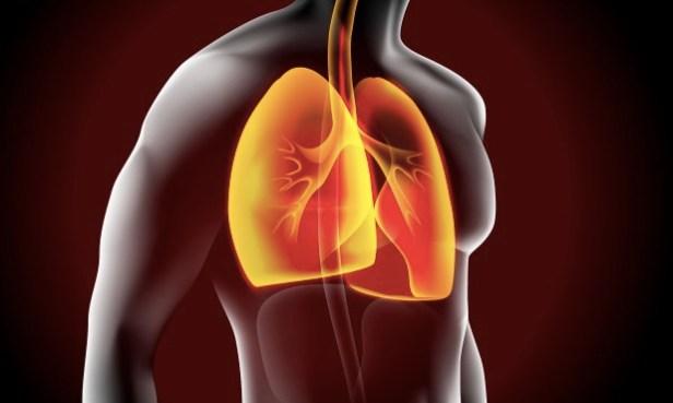 Cáncer de pulmón: el 60% de los casos son detectados en etapas avanzadas
