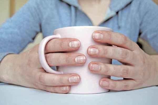 a leuconiquia es la anomalía cromática más común en uñas.