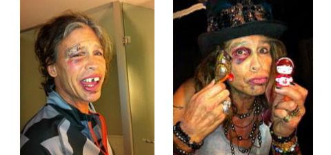 Steven Tyler injuries