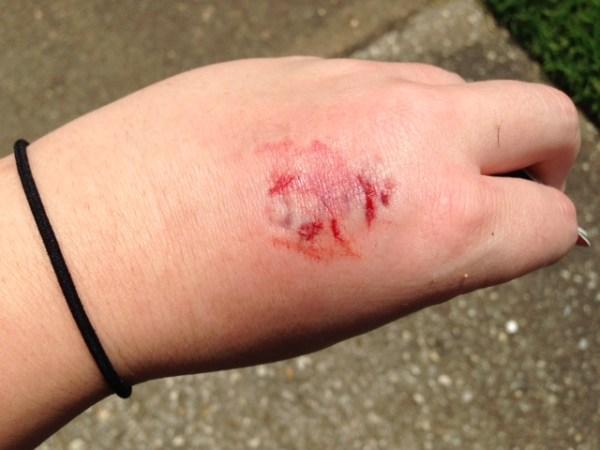 dog bite after being bitten