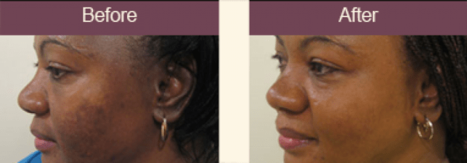 Few Ways to Treat Hyper-pigmentation