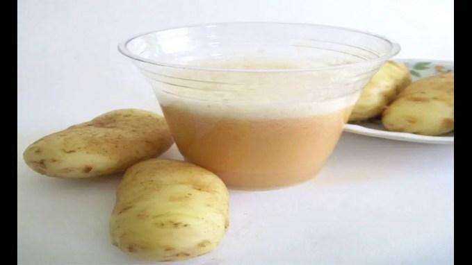 Beauty Hack: Lighten Hyperpigmentation With Potatoes
