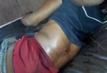 Un jeune blessé par balle