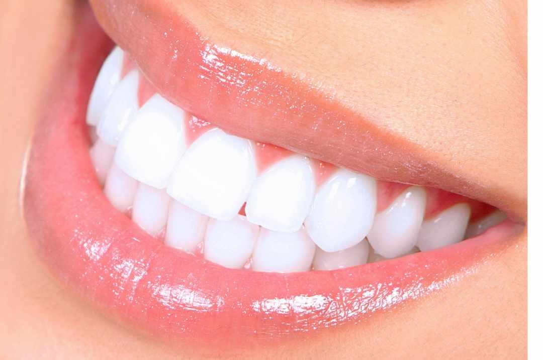 le matcha pour les dents