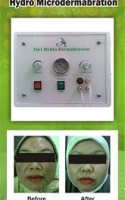 Hydro Microdermabration