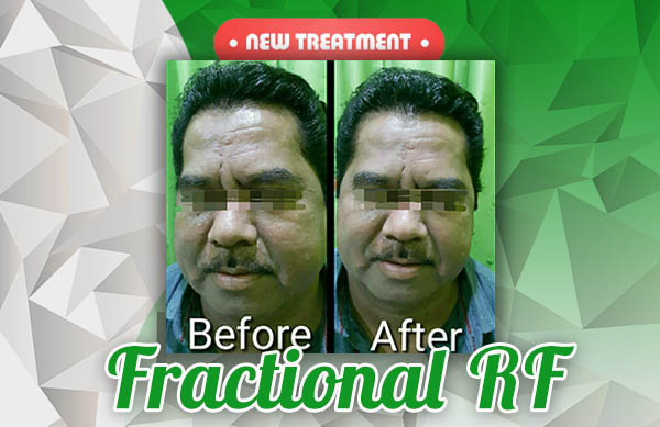 New Treatment_Fractional RF_600x389px