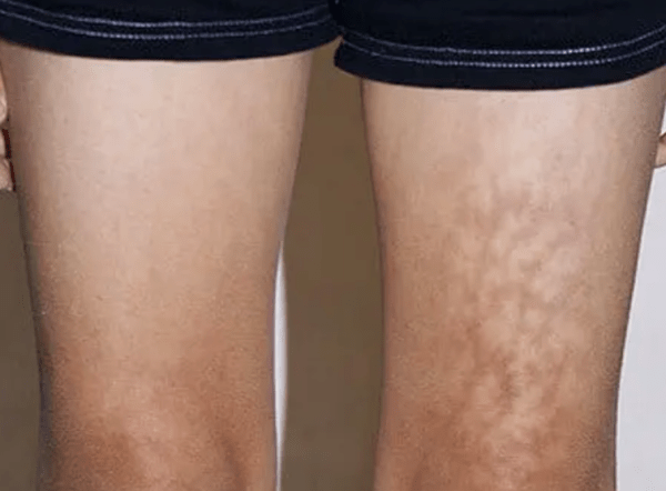 toasted skin syndrome