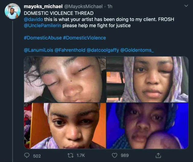 Davido's New Signee, Lil Frosh Accused Of Assaulting Girlfriend (Photos)