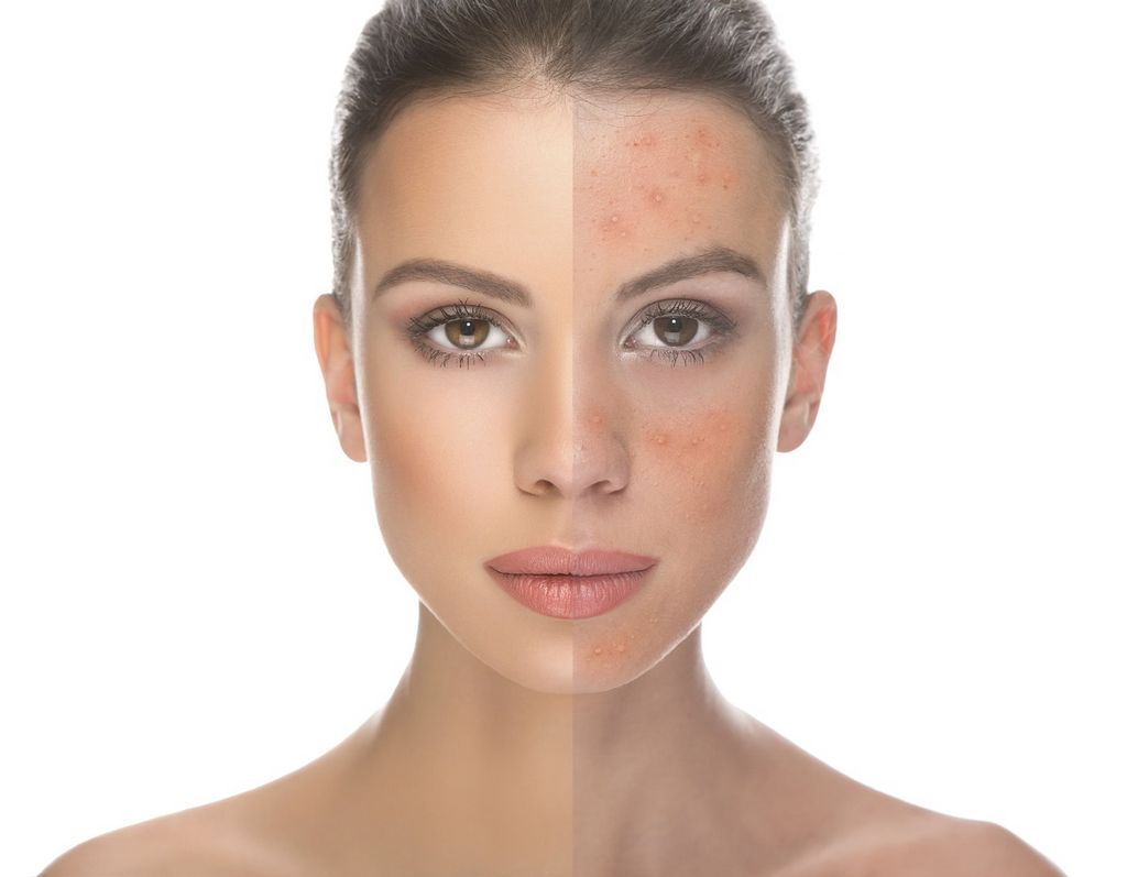 Rosacea Skin Care Treatments