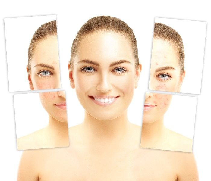 Acne Scar Repair Treatments
