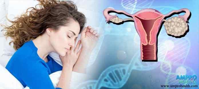 มะะเร็งรังไข่ถือว่าเป็นฝันร้ายของผู้หญิง