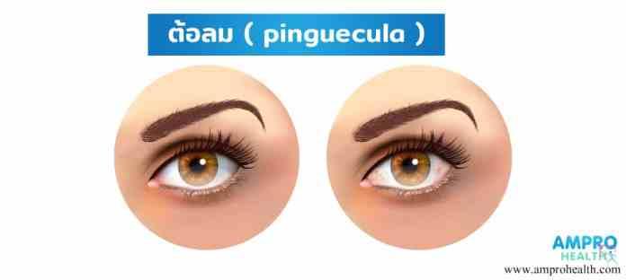 โรคต้อลม ( Pinguecula )