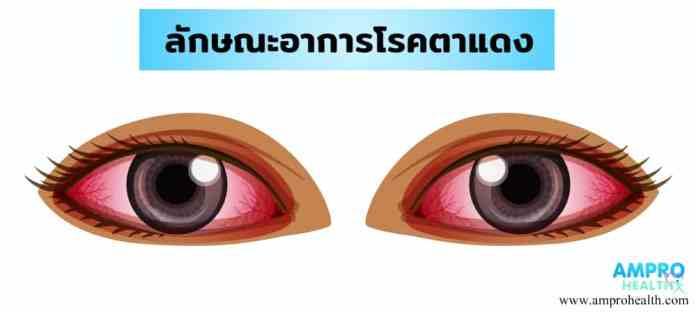 โรคตาแดง ( conjunctivitis )