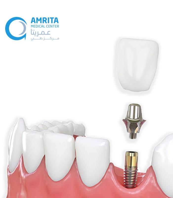 photos website dental implant