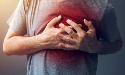 What Is Heart Attack?