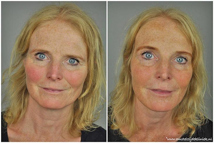Fronsrimpel met Botox
