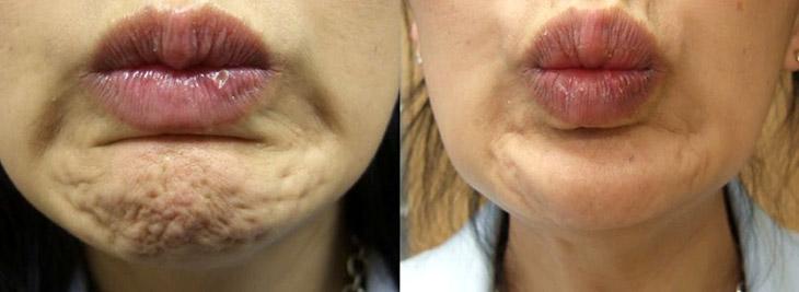 Putjes in kin voor en na botox behandeling - Amstelzijde Kliniek