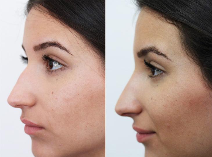 voor en na neuscorrectie