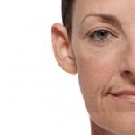 Voor de behandeling tegen hangende mondhoeken