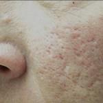 Last van acne littekens? Amstelzijdekliniek biedt Laserbehandelingen aan tegen de littekens
