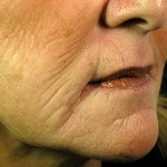 Een effectieve laserbehandeling tegen lijntjes en rimpels