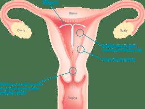 Uterus amy cissell writes tag archives uterus ccuart Choice Image