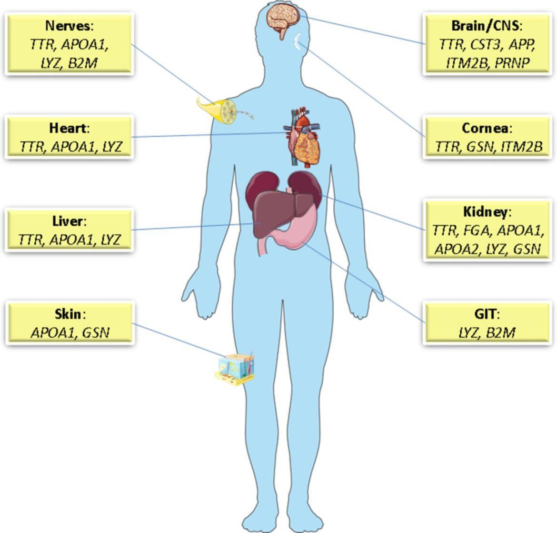 Amyloidosis; A Background