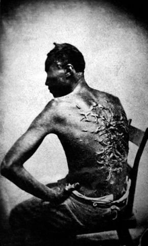 """A photograph of a Mississippi slave named """"Peter"""" in 1863, who reported lying in bed for two months after receiving these wounds from his overseer.  Photograph by McPherson and Oliver, National Archives"""