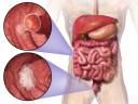 大腸ガンと性格スピリチュアルな意味|八戸整体関連ブログより