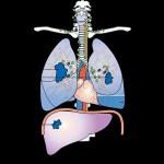 肺ガンと性格