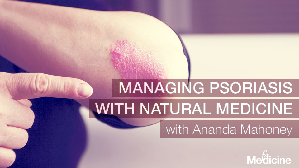 Managing-psoriasis-with-natural-medicine