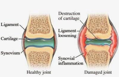 sakit-lutut1