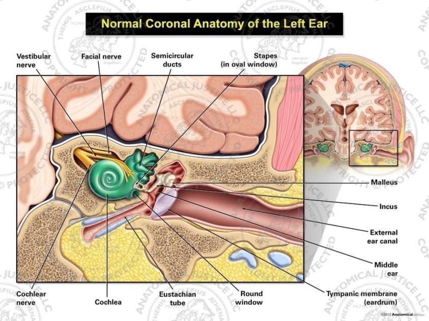 Normal Coronal Anatomy of the Left Ear