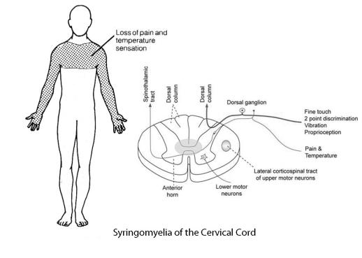 Syringomylia- symptoms and anatomical basis