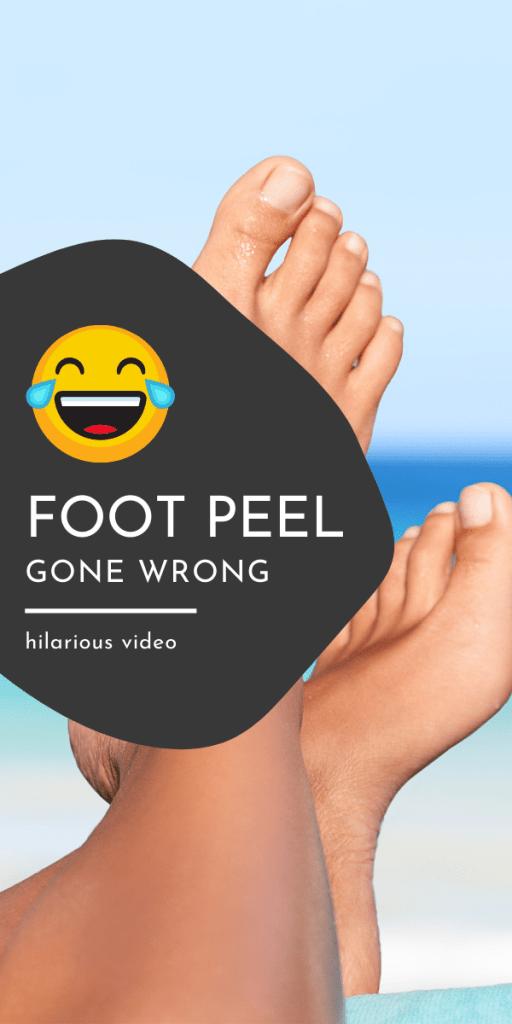 foot peel goes wrong