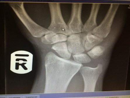 Andrew Burdett's X-ray showing the broken scaphoid in his hand.