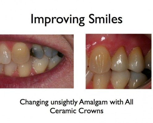 Improving Smiles