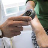 Hautkrebs-Screening mit dem Smartphone