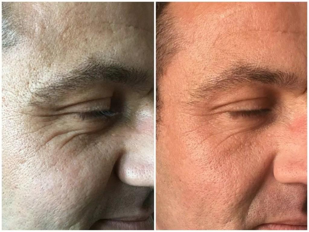 dermagen lines and wrinkles