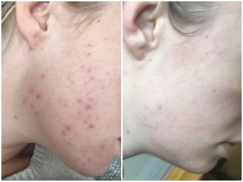 katie acne before after