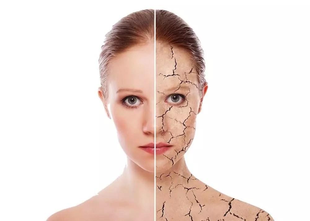 treating dry skin birmingham