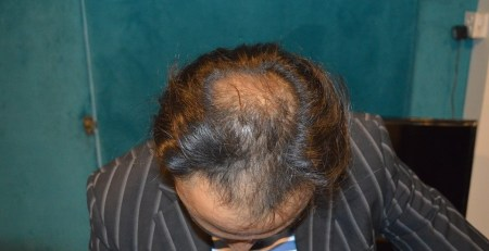 aneels hair transplant